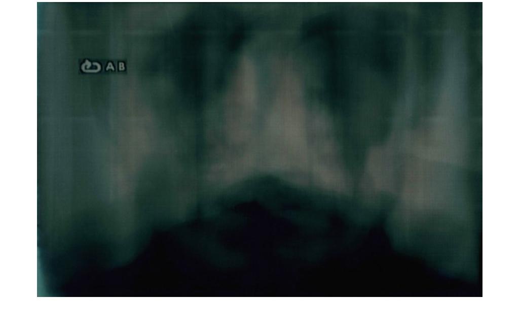 Fabio Sandri, Persona da Bergam, 2013 - Film imprint on photosensitive paper